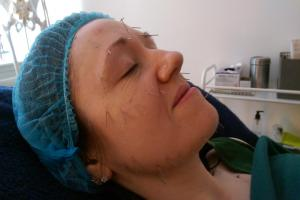 Paula undergoes her cosmetic acupuncture treatment at Acusports in Glasgow